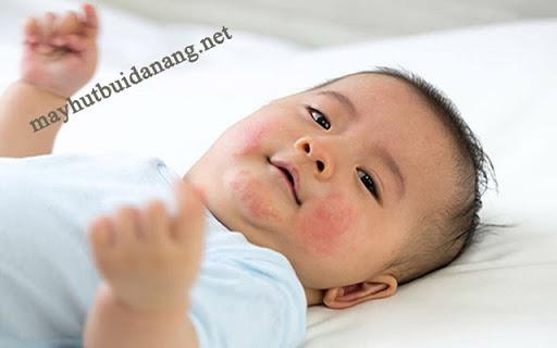 Tắm nước lá vối cho trẻ sơ sinh có rất nhiều tác dụng tuy nhiên bạn cần biết những lưu ý cần thiết khi tắm lá vối cho trẻ sơ sinh để đảm bảo an toàn